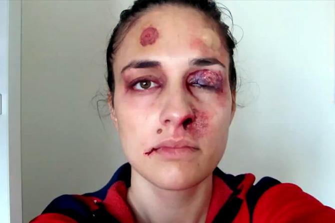 Фо�ог�а�ии изби��� дев��ек