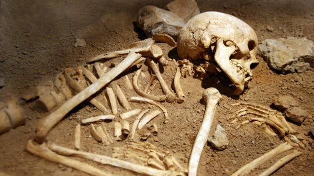 Фото кости человека в разрезе